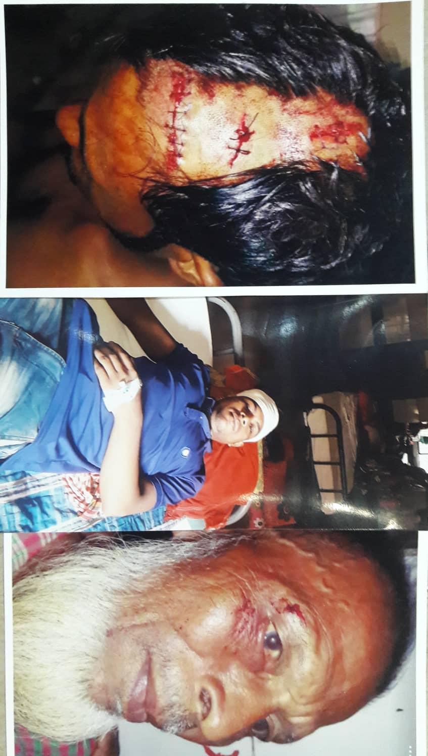 সরাইলে সন্ত্রাসী হামলায় ইটমিলের শ্রমিকসহ আহত ৬